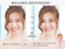 nose03_3.jpg