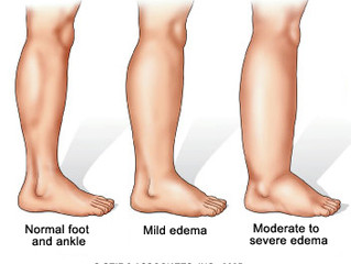 Tips for Dealing with Edema Caused by Congestive Heart Failure (CHF)
