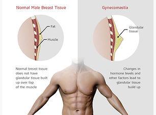 what-is-gynecomastia-11.jpg