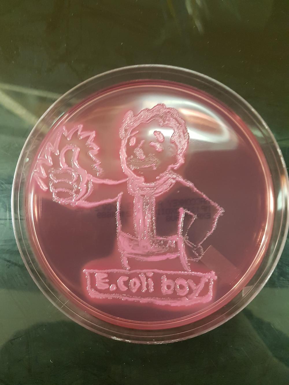 Escherichia coli (E. coli) on MacConkey agar