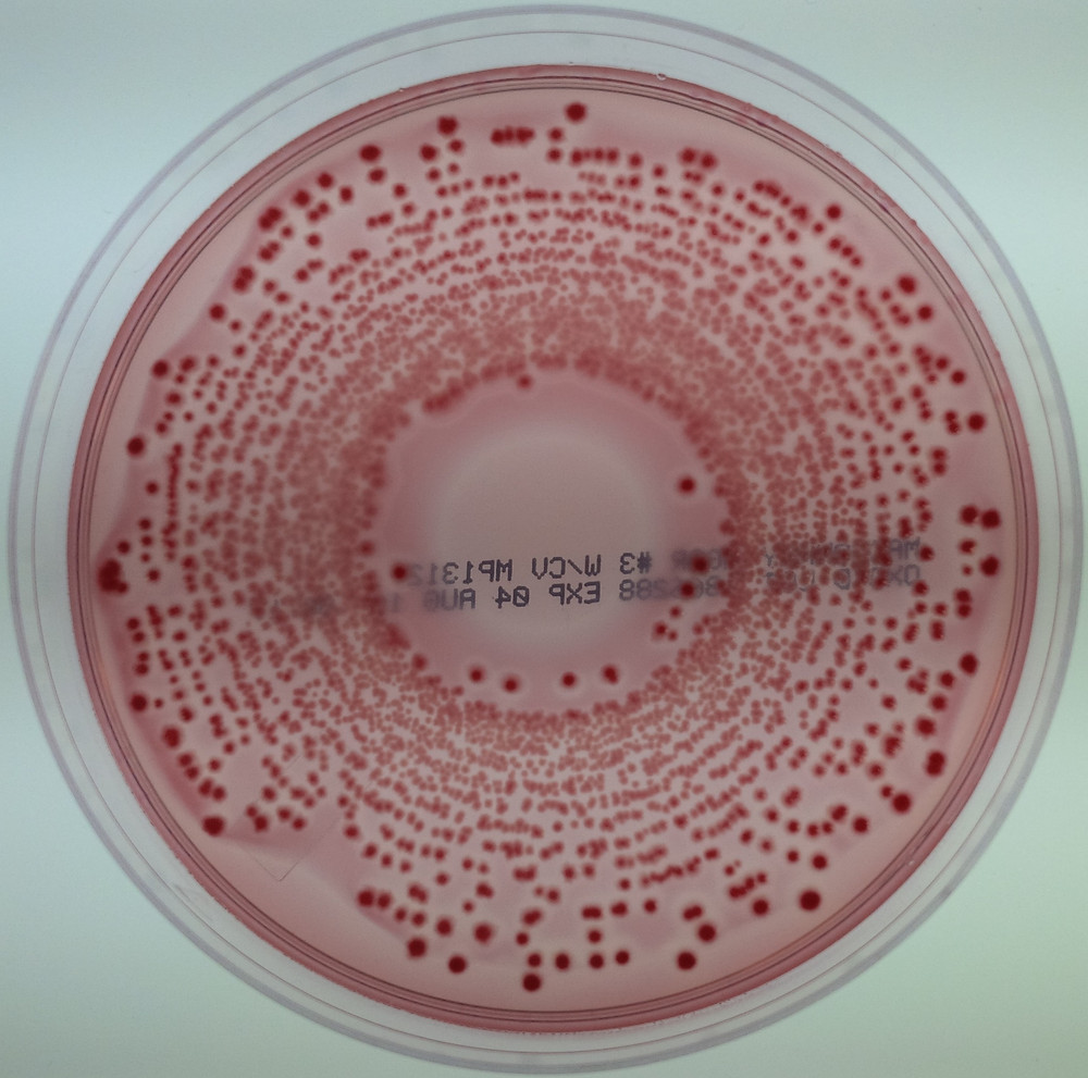 E. coli colonies (pink) inoculated onto MacConkey agar.
