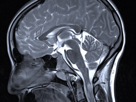 Mein Weg mit einer Diagnose   Label: MS
