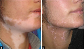 world-vitiligo-day_1466782578.jpeg