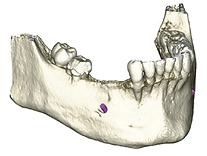 bone 1.png