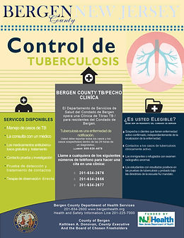 TB Control Spanish Version.jpg