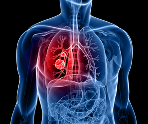 Nearly 21,000 Canadians will be diagnosed with lung cancer in 2019.