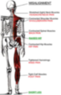 Veterbral Subluxation