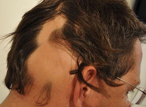 alopecia-21.jpg