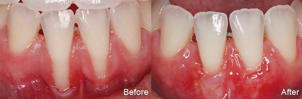 periodontics gum aesthetics