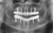 dental implants dentures implant bar