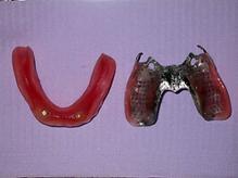 dental implants dentures