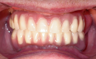 dental implants bridge