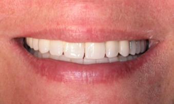dental implants dentures ceramic brige