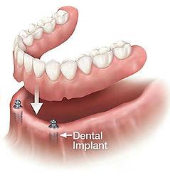 overdentures, over dentures