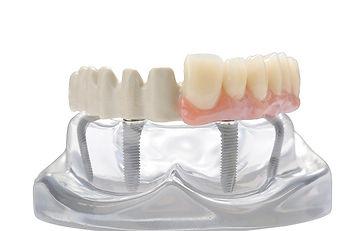 JUVORA-Dental-Disc-Implant-Prosthetic-Framework--Invibio-Biomaterial-Solutions_edited.jpg