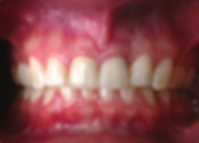 dental crown for single tooth dental implant