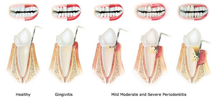 Periodontics, Periodontitis