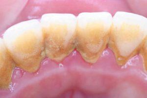 虫歯や歯周病の原因は?歯科医推奨の歯磨き革命