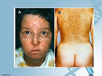 xeroderma-pigmentoso-17-728.jpg