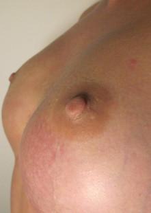 Natural 3.5mm Blush Prosthetic Nipples