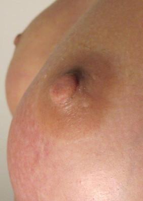 Natural 3.5mm Peach/Prosthetic Nipples