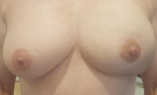 Single Prosthetic Nipple - Custom Colour Match