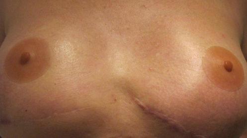 prosthesis nipple, silcone nipple, NHS nipple, Nipple