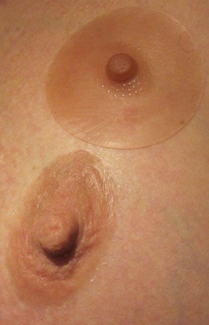 Compare a typical NHS nipple to one of my Prosthetic Nipples