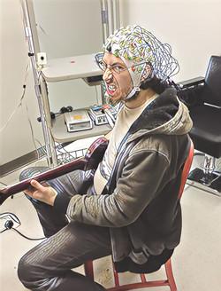 brain scan, needs emergency lobotomy