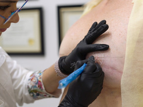 3-D Areola Tattoo: Everything You Need to Know