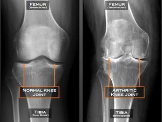 The Relationship Between Age & Arthritis