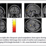Advanced Imaging Says Chiropractic Improves Brain Function