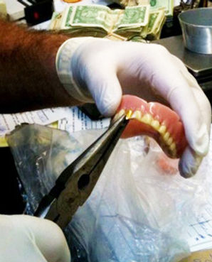 gold-tooth-removal.jpg