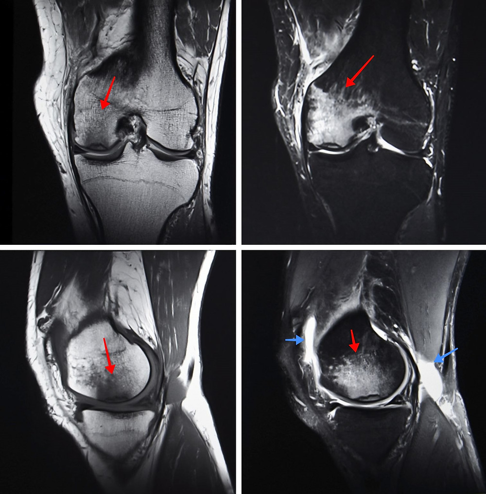 Bone bruise in the knee joint