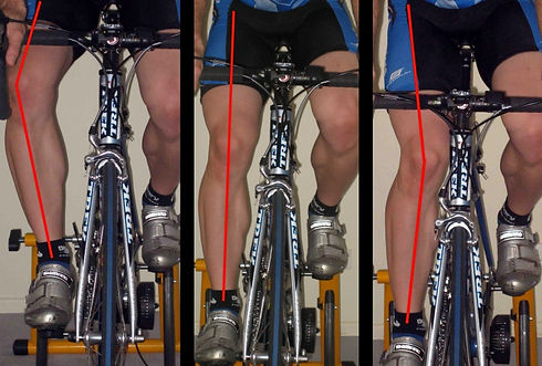 knee alignment wix website.jpg
