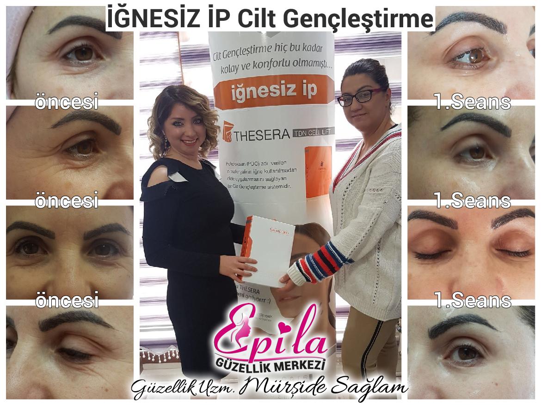 Epila-Güzellik-ignesiz-ip-01