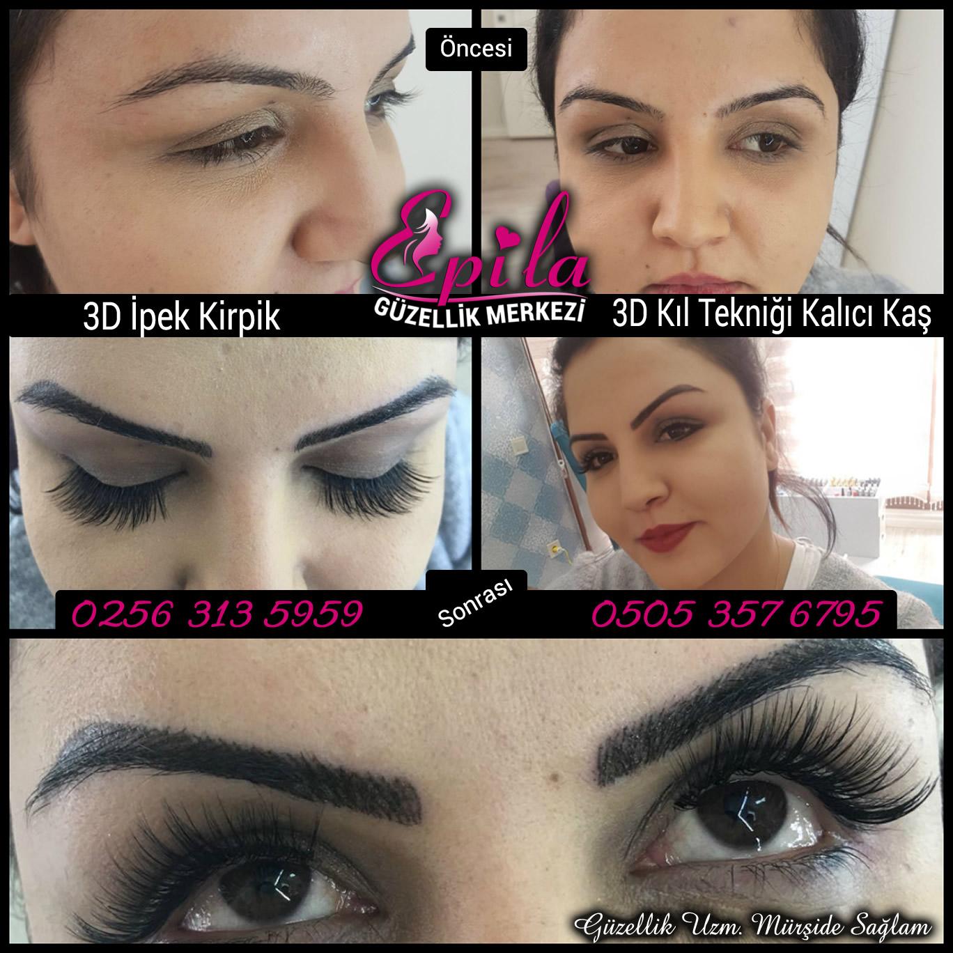 Epila-Güzellik-3D-kalici-kas103
