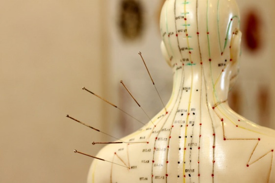 Acupunctura.png