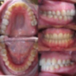 Pacijent_žensko_43_godine_slika_poslije