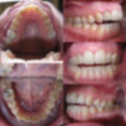 Pacijent_žensko_43_godine_slika_prije.j