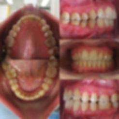 Pacijent_žensko_41_godina_slika_poslije
