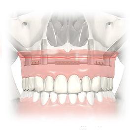 Zygomatic-Dental-Implant-Procedure.jpg