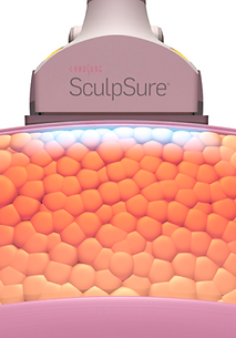sculpsure2.png
