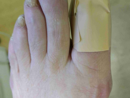 Chemical Avulsion of Fungal Nails Using Urea