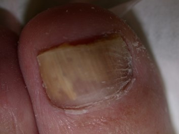 Total Nail Avulsion - the only way to cure fungal nail infection?