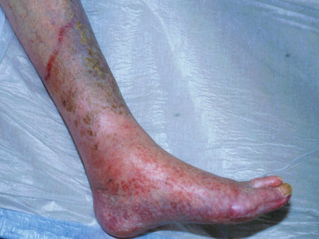 Whats your patient hiding from you - tinea?