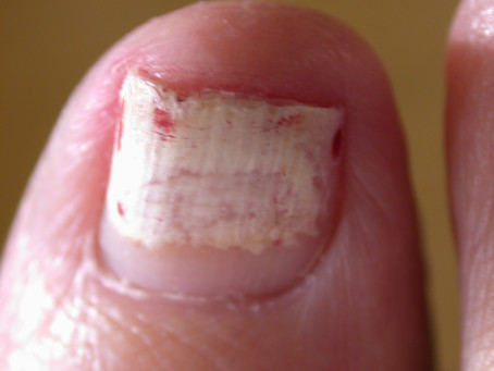 What if its not a fungal nail?