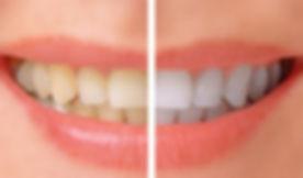 Whitening-before-after-mrqfwjc5di7z5jsx2o5vs7s1xtouvxsua4nmnqt2l0.jpg