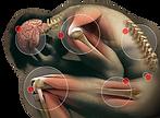 Gérer la douleur - Hypnothérapeute Montpellier
