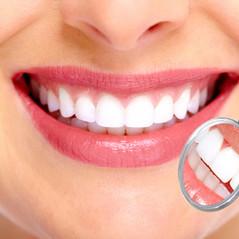 Sonrisa:  La importancia de la higiene bucal